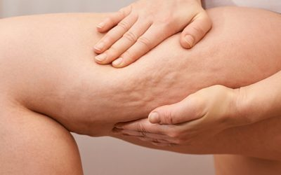 ¿Cómo prevenir la celulitis?